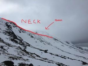 Back side of the neck